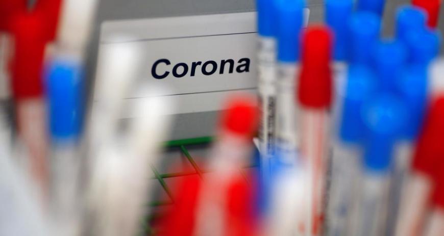 У Львові розпочали високоточне ІФА-тестування на антитіла до коронавірусу